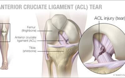 Proper training can reduce the risk of ACL injury – Mayo Clinic News Network