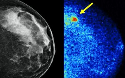 Dense breast tissue and molecular breast imaging – Mayo Clinic News Network